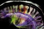 Brain Scan 5