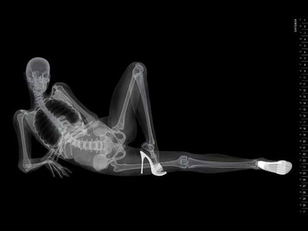 X Rated - woman, posing, high heels, no clothes, xray